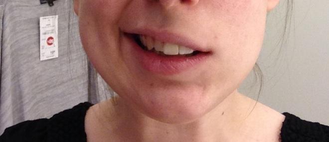 Dit was mijn breedste glimlach net na mijn laatste tandartsbezoek met dubbele dosis verdoving :')